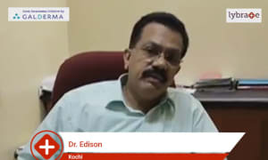 Dr  Edison speaks on IMPORTANCE OF TREATING ACNE EARLY