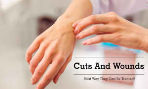 Top Health Tips on Treating Treating a Puncture Wound | Lybrate