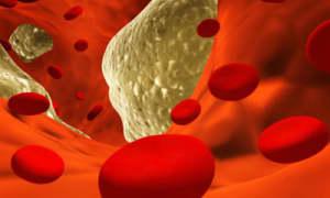 Zyrova C 10 mg/75 mg Capsule - Uses, Side Effects