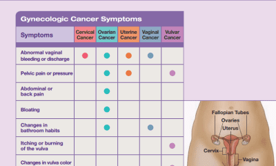 Cervical Cancer Prevention & Early Detection - By Dr  Jay