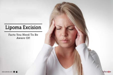 Lipoma Excision - Facts You Need To Be Aware Of! - By Dr