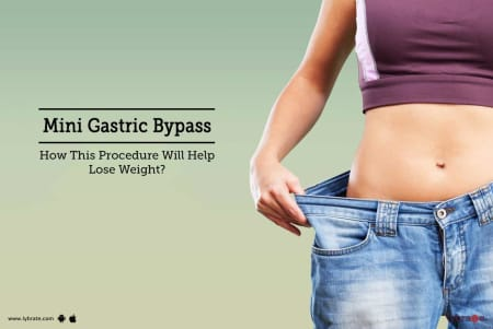 Mini Gastric Bypass - How This Procedure Will Help Lose