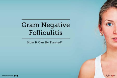 Gram Negative Folliculitis - How It Can Be Treated? - By Dr  Malini