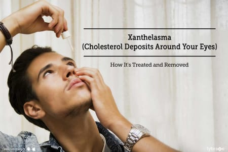 Xanthelasma (Cholesterol Deposits Around Your Eyes) - How
