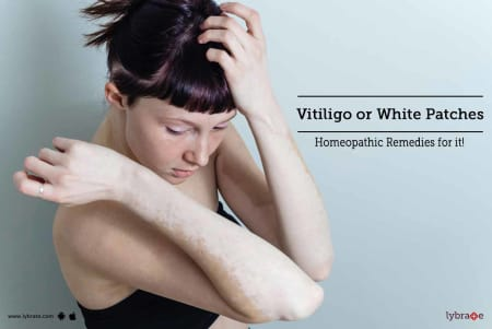 Vitiligo or White Patches - Homeopathic Remedies for it