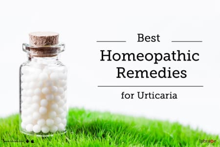 Best Homeopathic Remedies for Urticaria - By Dr  Shriganesh