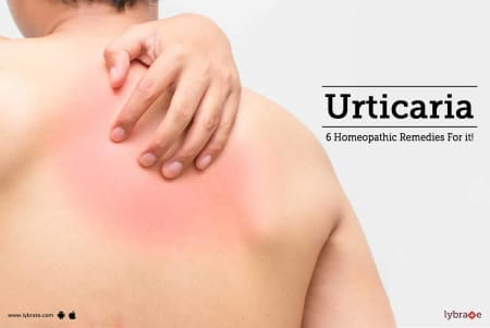 Urticaria - 6 Homeopathic Remedies For it! - By Dr  Sanket