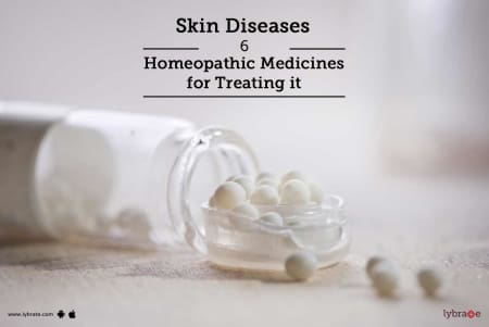 Skin Diseases - 6 Homeopathic Medicines for Treating it - By Dr