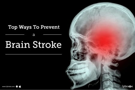 Top Ways To Prevent A Brain Stroke - By Dr  ( Maj) Jaiveer Khatri