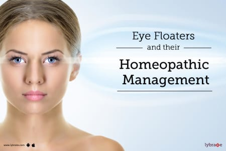 Eye Floaters and Their Homeopathic Management - By Dr  Sumit Dhawan