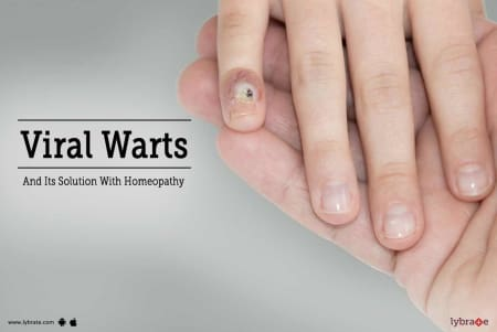 Viral Warts and Its Solution With Homeopathy - By Dr  Naitik Shah
