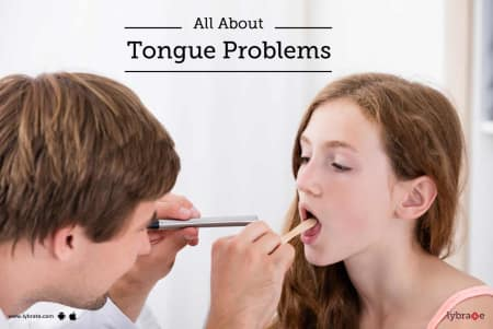 All About Tongue Problems - By Dr  Hemalatha Sanjay | Lybrate