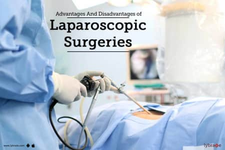 Advantages And Disadvantages of Laparoscopic Surgeries! - By Dr