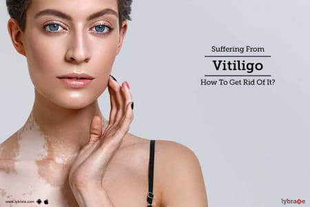 Suffering From Vitiligo - How To Get Rid Of It? - By Dr