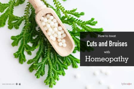 How to Treat Cuts and Bruises With Homeopathy - By Dr