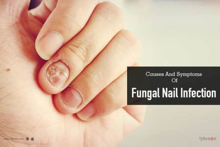 Causes and Symptoms of Fungal Nail Infection - By Dr. Nivedita Dadu ...