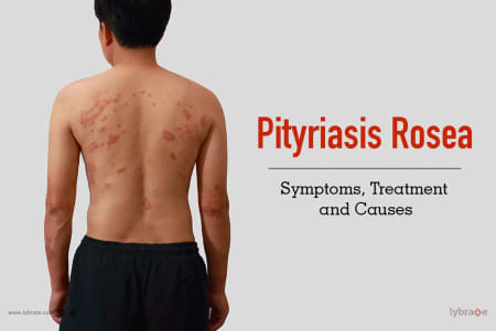 Pityriasis Rosea Symptoms Treatment And Causes By Dr Sandesh Gupta Lybrate
