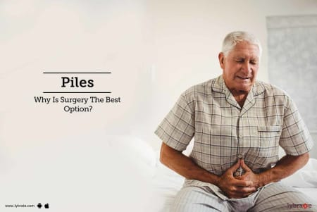 Piles: Symptoms, Causes, Diagnosis And Treatment of piles