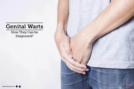 Warts - Causes, Symptom, Diagnosis, Treatment, Prevention