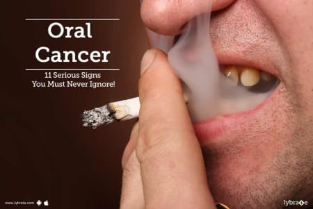 Oral Cancer - 11 Serious Signs You Must Never Ignore! - By Dr