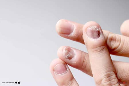 Fungal Infection Of Skin And Its Treatment! - By Dr  Nitin