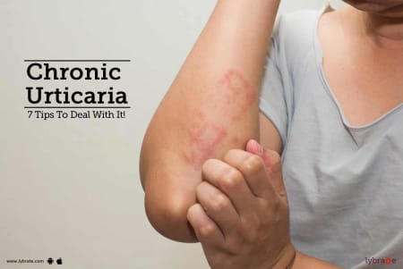 Chronic Urticaria - 7 Tips To Deal With It! - By Dr  Laxman