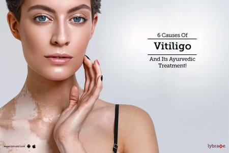 6 Causes Of Vitiligo And Its Ayurvedic Treatment By Dr Prasanna Kakunje Lybrate