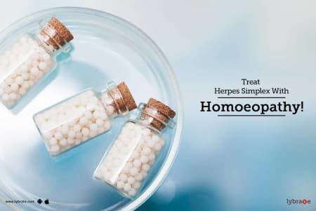 Treat Herpes Simplex With Homoeopathy! - By Dr  Anil Raghav | Lybrate