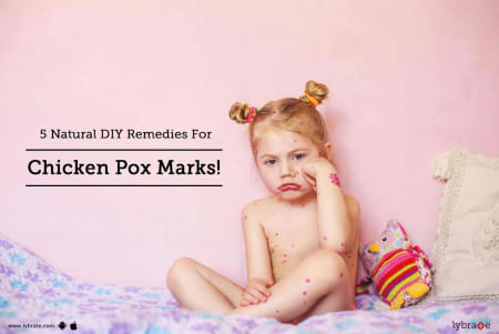5 Natural Diy Remedies For Chicken Pox Marks By Dr Ganesh Avhad