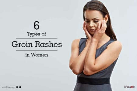 6 Types of Groin Rashes in Women - By Dr  Meenu Goyal | Lybrate