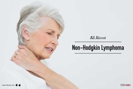 All About Non-Hodgkin Lymphoma - By Dr  Prashant Mehta | Lybrate