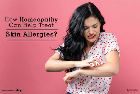 How Homeopathy Can Help Treat Skin Allergies? - By Dr  Lalit