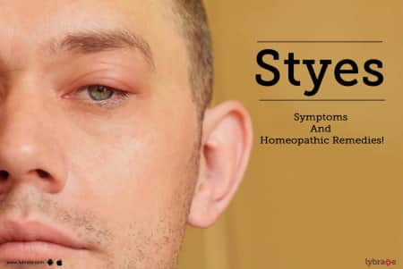 Styes - Symptoms And Homeopathic Remedies! - By Dr  Ramneek
