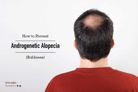 How To Prevent Androgenetic Alopecia Baldness Naturally By Dr Vignessh Raj Lybrate