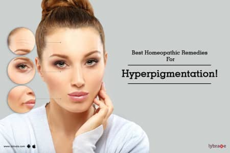 Best Homeopathic Remedies For Hyperpigmentation! - By Dr  Mukesh