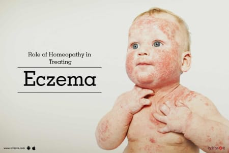 Role of Homeopathy in Treating Eczema - By Dr  Sameer Kumar