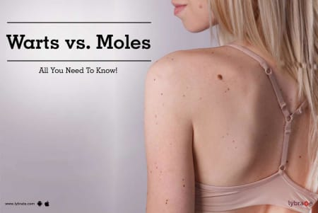 Warts Vs Moles All You Need To Know By Looks Forever Hair And Skin Aesthetic Clinic Lybrate