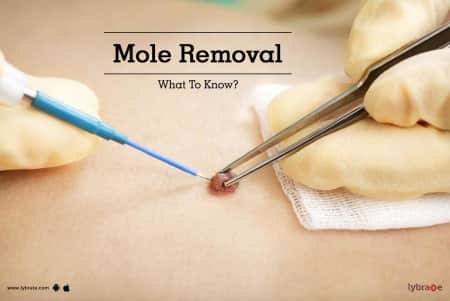 Skin Tag Removal Treatment Procedure Cost Recovery Side