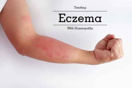 Treating Eczema With Homeopathy - By Dr  Anushri Banik | Lybrate