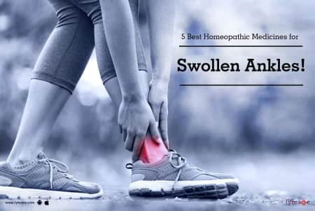 5 Best Homeopathic Medicines for Swollen Ankles! - By Dr