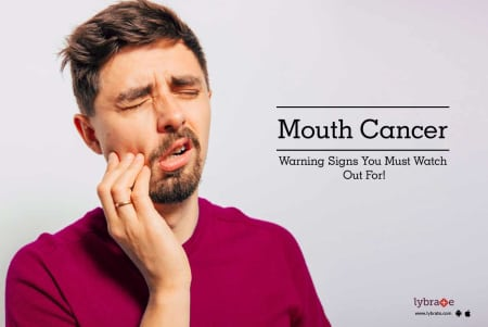 Mouth Cancer - Warning Signs You Must Watch Out For! - By Dr