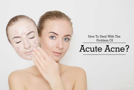 Open Pores: Treatment, Procedure, Cost, Recovery, Side Effects And More