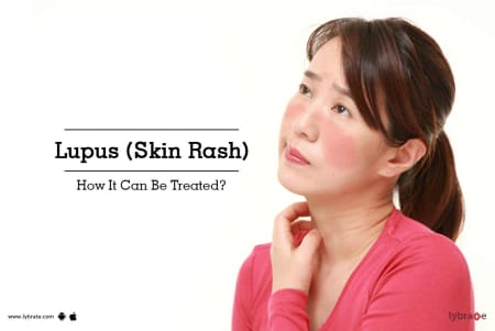 Lupus (Skin Rash) - How It Can Be Treated? - By Dr  Sandesh