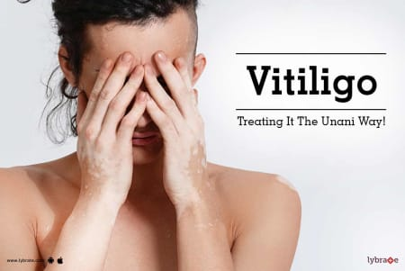 Vitiligo - Treating It The Unani Way! - By The Herbals | Lybrate