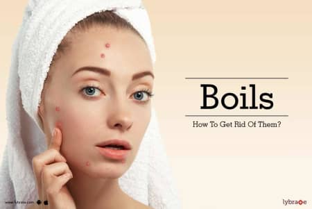 Boils- How To Get Rid Of Them? - By Dr  Amit Varma | Lybrate