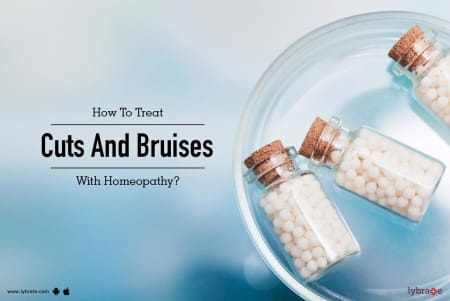 How To Treat Cuts And Bruises With Homeopathy? - By Dr