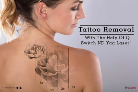 Tattoo Removal Tips & Advice From Top Doctors | Lybrate