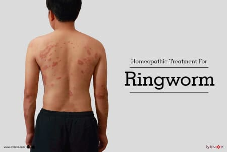 Homeopathic Treatment For Ringworm - By Dr  Kuravi V S M K