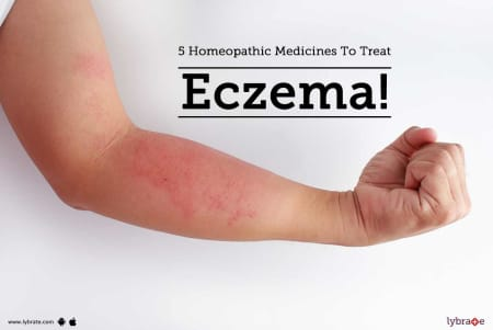5 Homeopathic Medicines To Treat Eczema! - By Dr  Anand