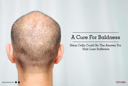 A Cure For Baldness Stem Cells Could Be The Answer For Hair Loss